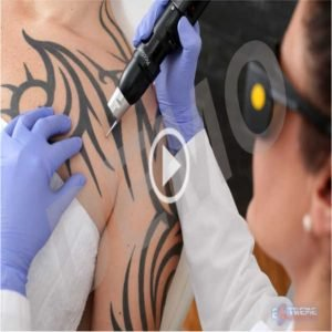 LASER TATTOO REMOVAL SALES VIDEOS